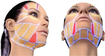 Zonas Hifu Facial Benidorm
